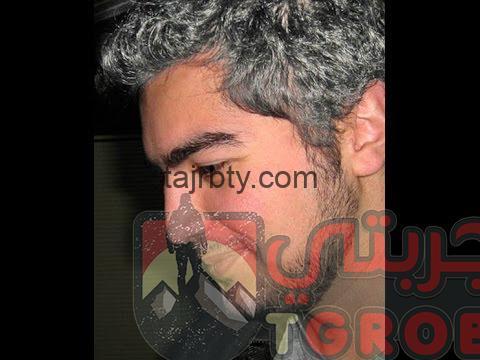 Photo of وصفة للتخلص من الشعر الأبيض سعيد حساسين
