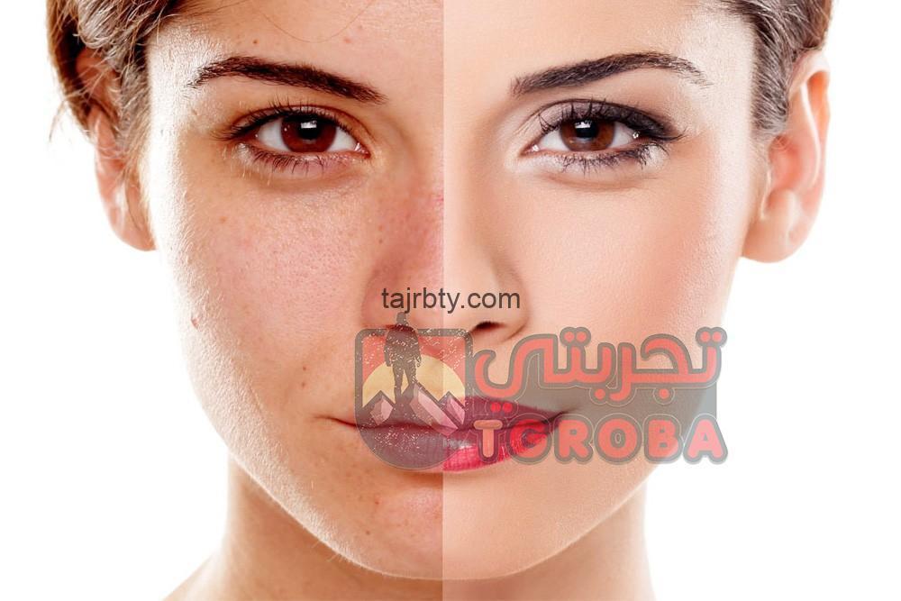 Photo of أسباب الكلف وعلاجه