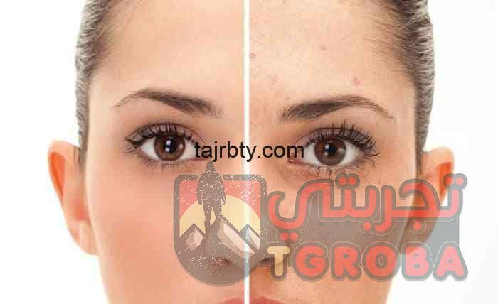 Photo of ماسك لإزالة الحبوب من الوجه بشكل نهائي بوصفات طبيعية منزلية ومضمونة