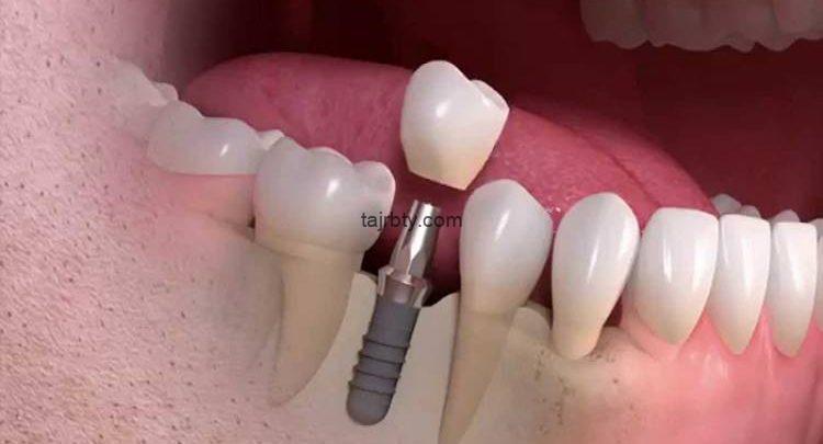 تجربتي مع طربوش الأسنان وسعر طربوش الأسنان