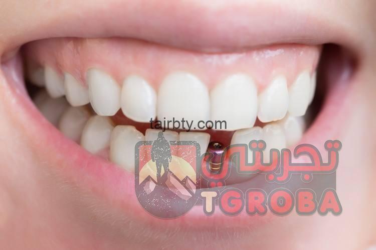 Photo of تجربتي مع زراعة الأسنان