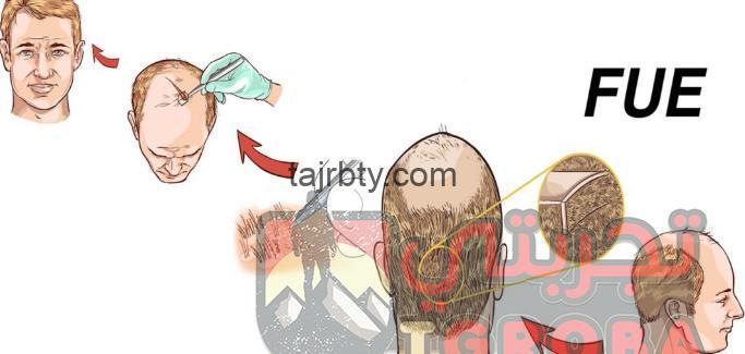 تجربتي مع زراعة الشعر