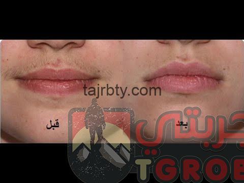 Photo of تجربتي مع زيت النمل لإزالة الشعر وسعر زيت النمل الاصلي