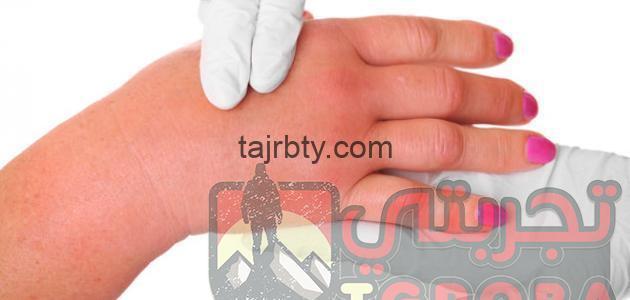 Photo of علاج الأملاح في الجسم جابر القحطاني