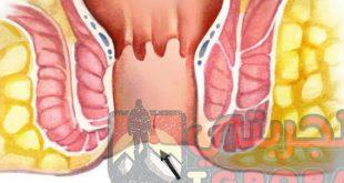 علاج الشرخ جابر القحطاني