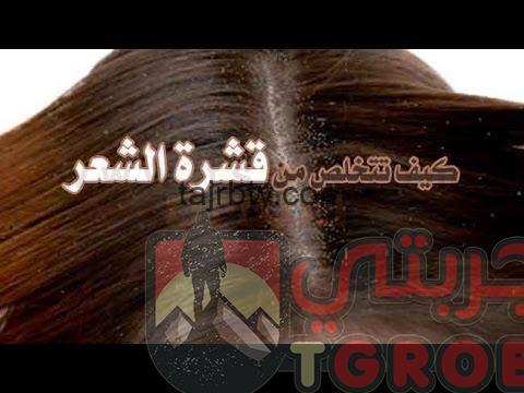 Photo of وصفة لقشرة الشعر مجربة