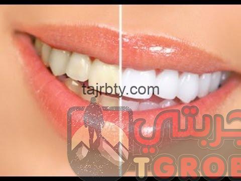 وصفة مجربة لتبييض الأسنان
