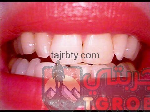 Photo of وصفة مجربة لتبييض الأسنان