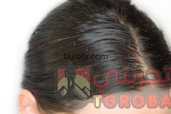 وصفة مجربة لتطويل الشعر