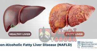اسهل طريقة لازالة دهون الكبد