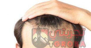 افضل مراكز زراعة الشعر في تركيا