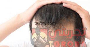 تجارب زراعة الشعر عند الدكتور يتكين باير 2020
