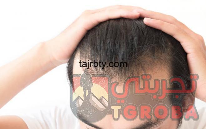 Photo of تجارب زراعة الشعر عند الدكتور يتكين باير 2021