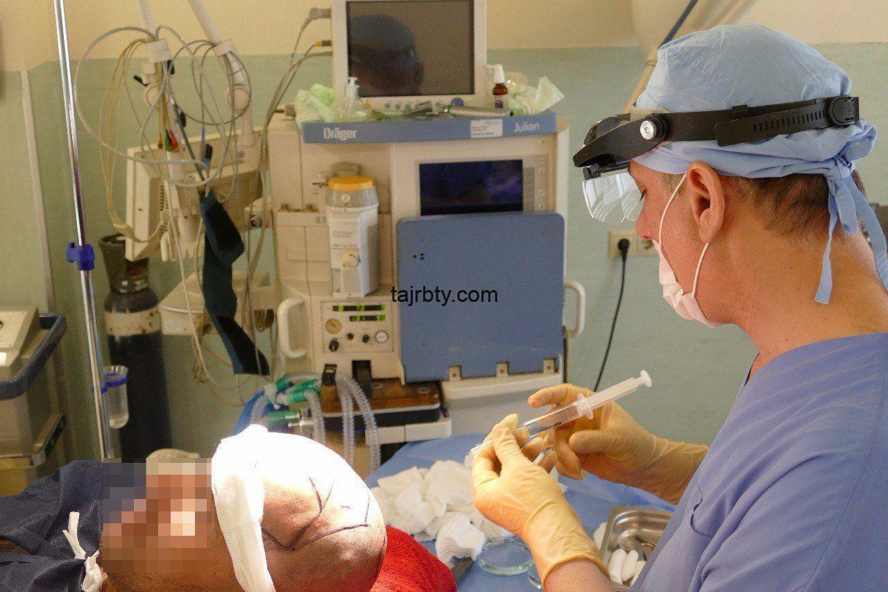تجارب زراعة الشعر عند الدكتور يتكين باير