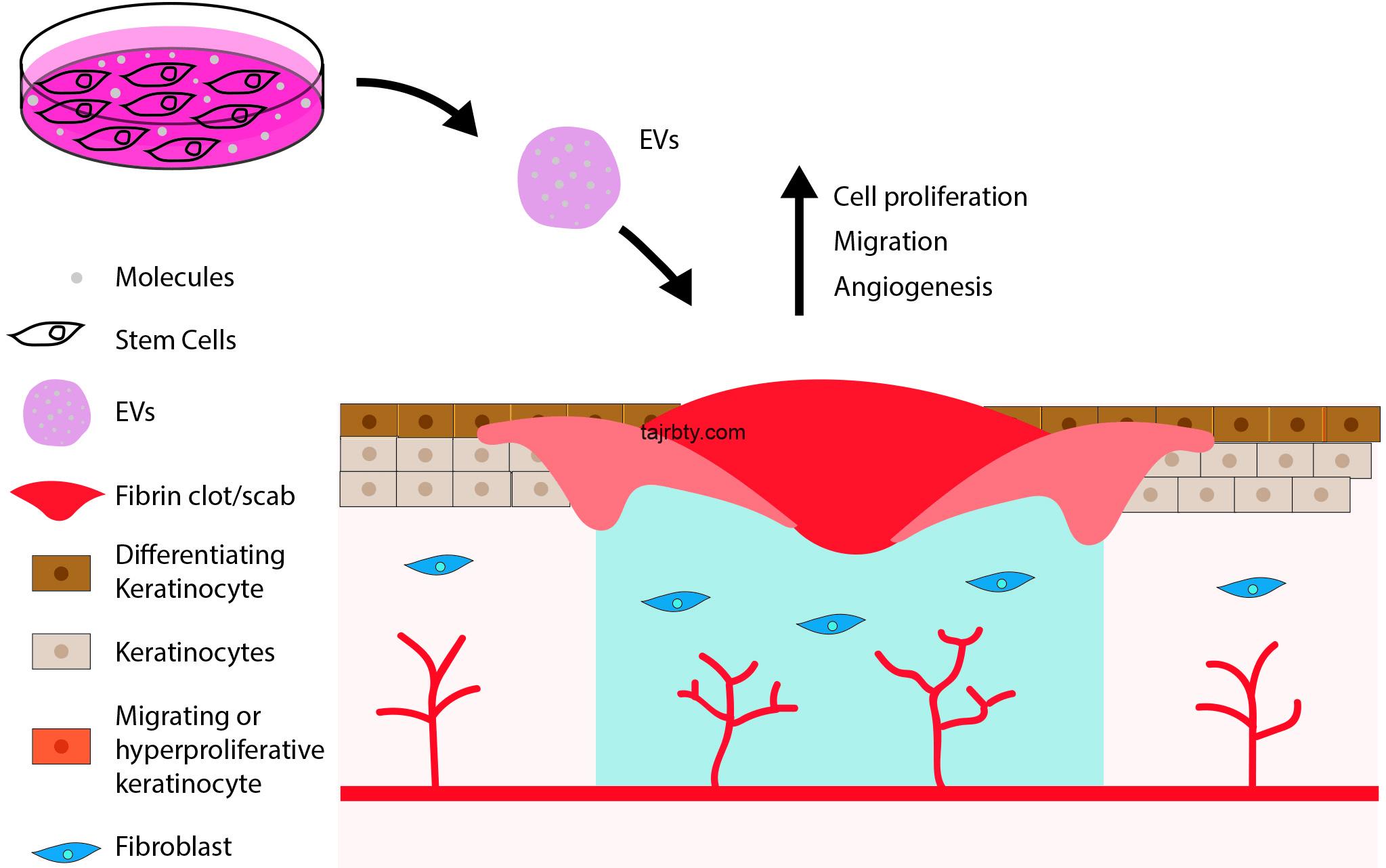 تجربتي مع الخلايا الجذعية للبشرة