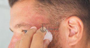 تغطية الرأس بعد زراعة الشعر