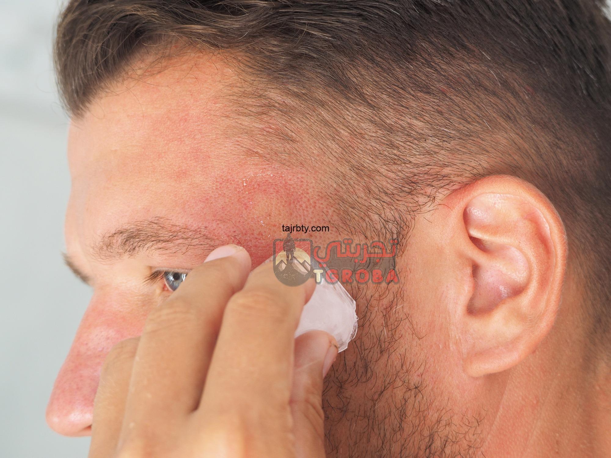 Photo of تغطية الرأس بعد زراعة الشعر