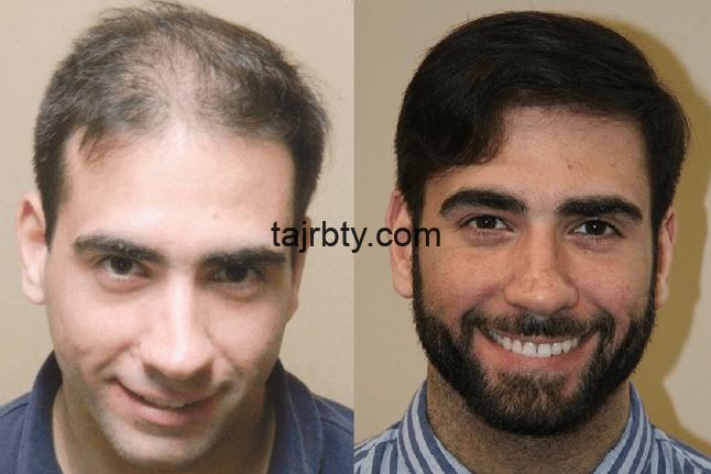 تكلفة زراعة الشعر في تركيا