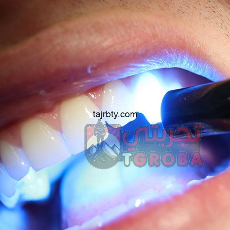 Photo of تلميع الأسنان بالليزر ما هي مميزاته وعيوبه ومضاعفات تبييض الأسنان بالليزر