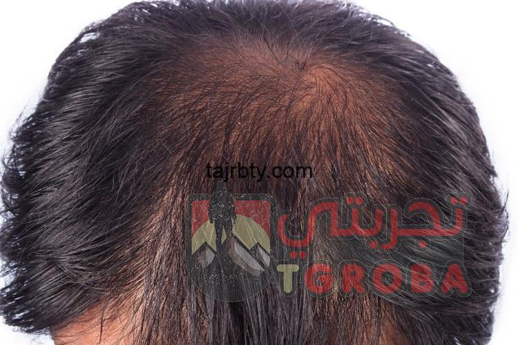 Photo of زراعة الشعر في الرياض