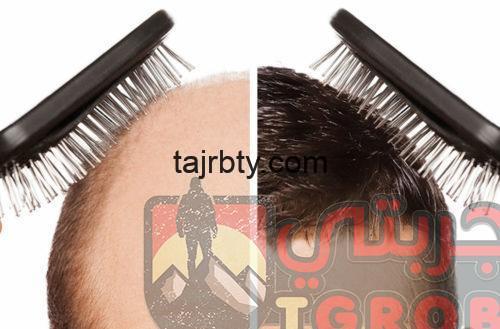 Photo of زراعة الشعر في دبي