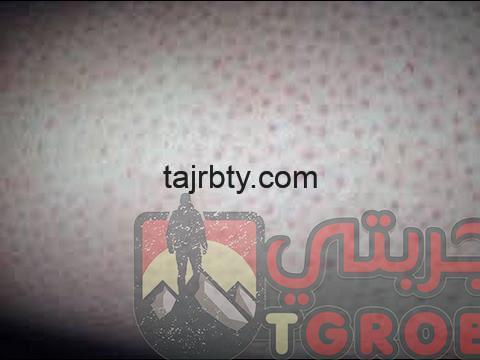 Photo of علاج الشعر تحت الجلد في الساق