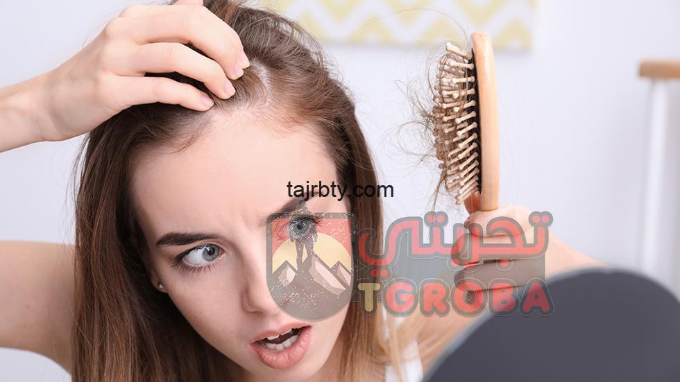 Photo of علاج تساقط الشعر الشديد عند النساء بخلطات طبيعية مضمونة في المنزل وفعالة 100%