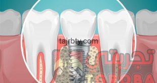 هل تركيب الأسنان مؤلم و أهم مشاكل تركيبات الأسنان الثابتة