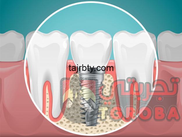 Photo of هل تركيب الأسنان مؤلم و أهم مشاكل تركيبات الأسنان الثابتة