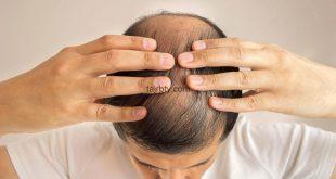 تكلفة زراعة الشعر في الجزائر