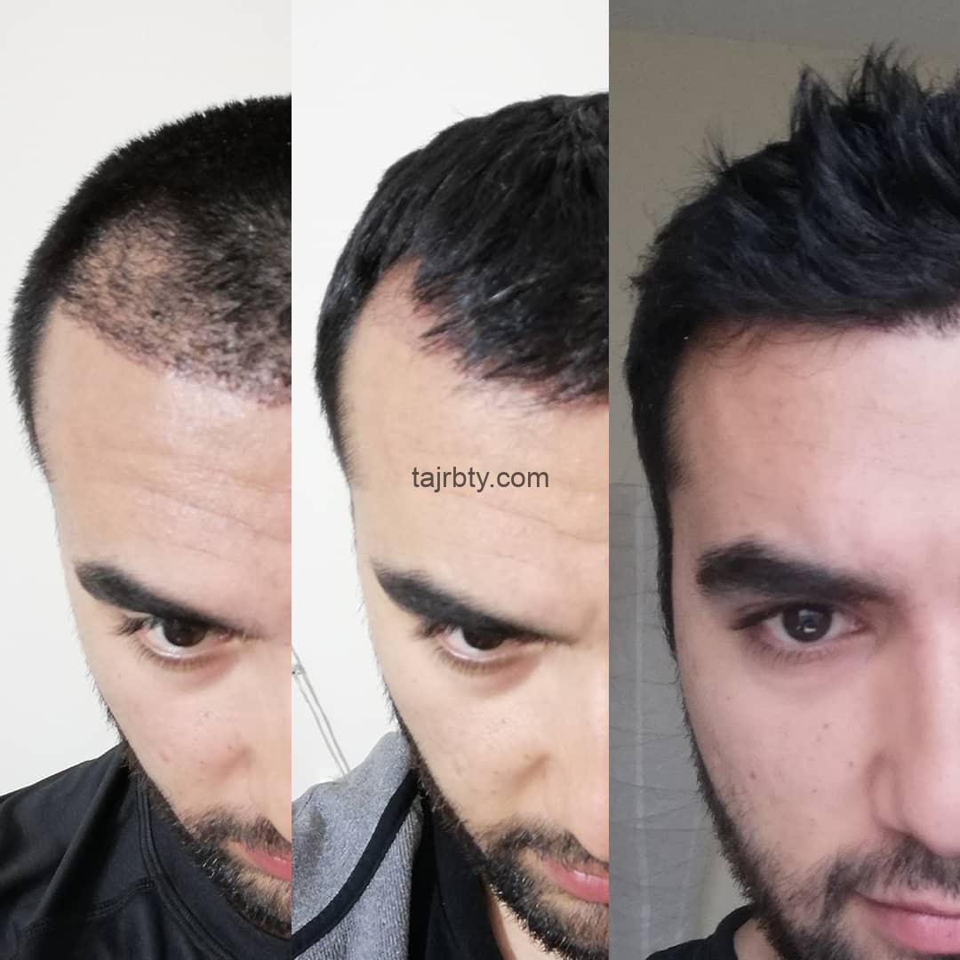 زراعة الشعر في تركيا اسطنبول