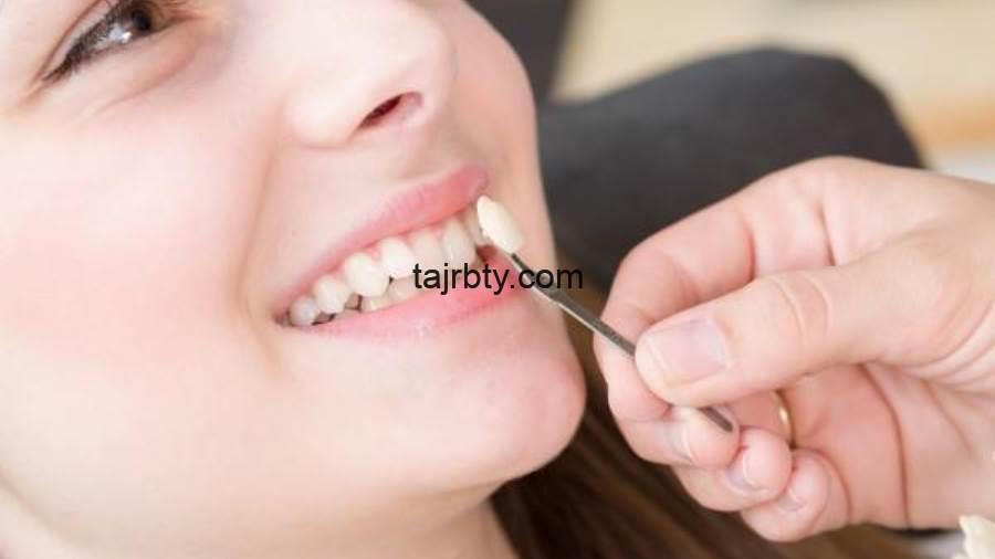 Photo of تجربتي مع الفينير المتحرك لتجميل الأسنان