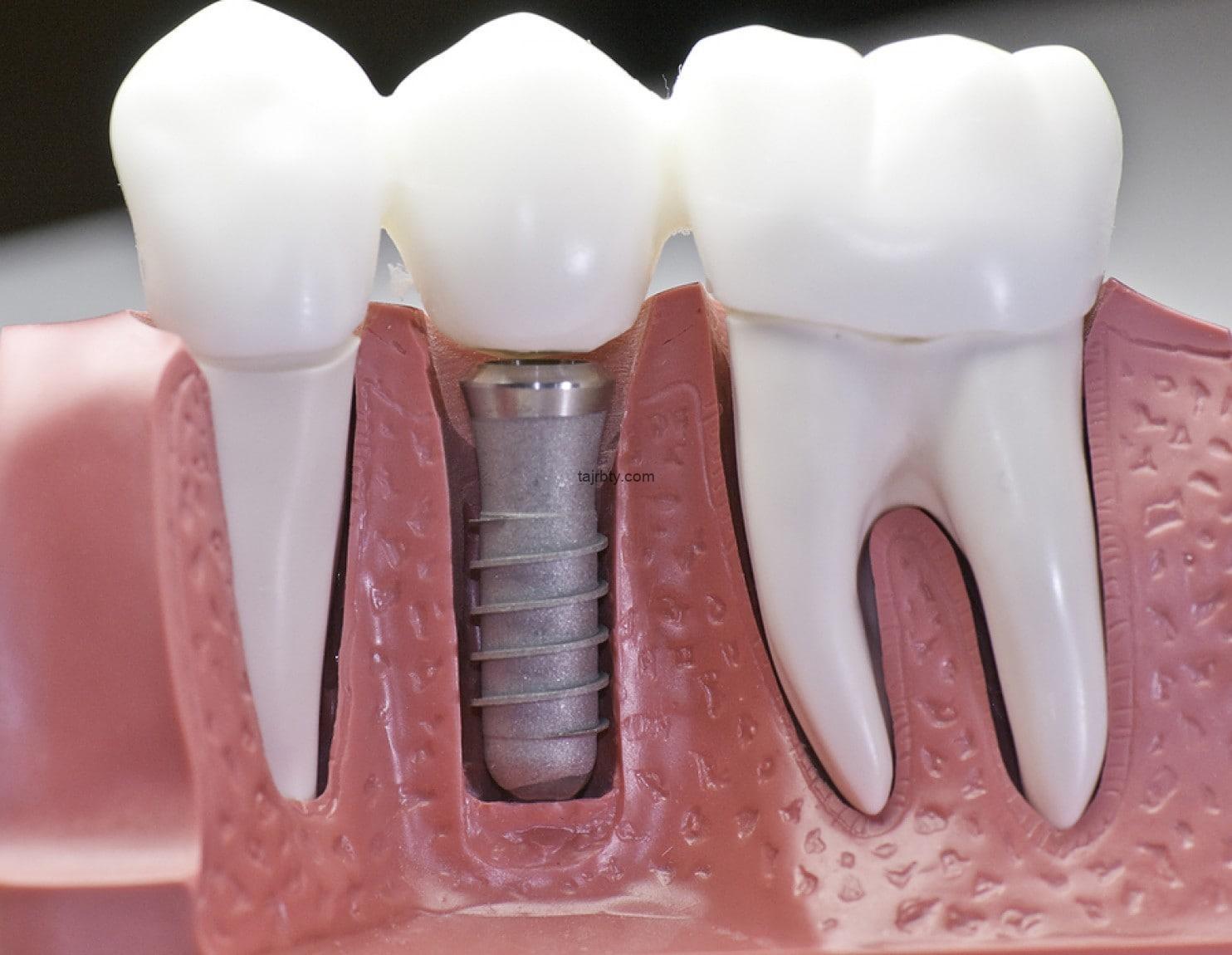تجربتي مع زراعة الأسنان الفورية