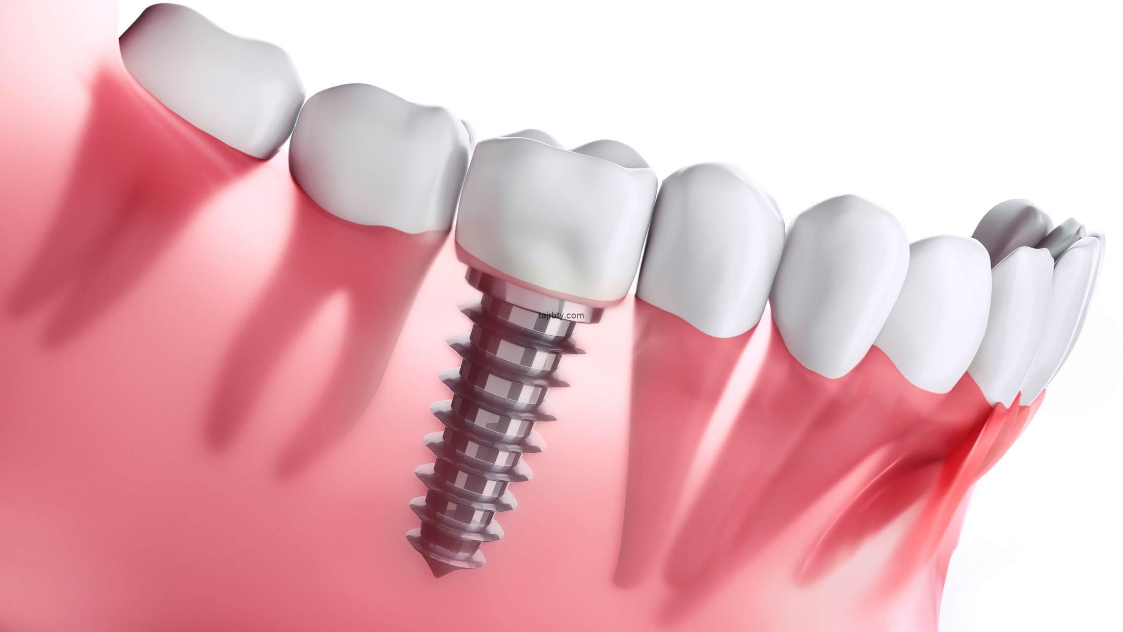 هل زراعة الأسنان تسبب رائحة كريهة