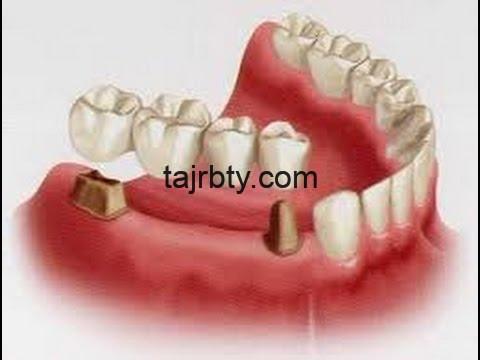 Photo of تجربتي مع تركيب الاسنان وتركيب جسر أسنان