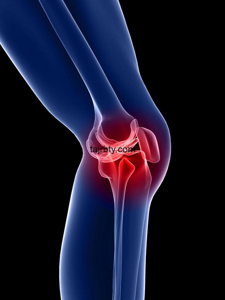 Photo of تجربتي في علاج خشونة الركبة