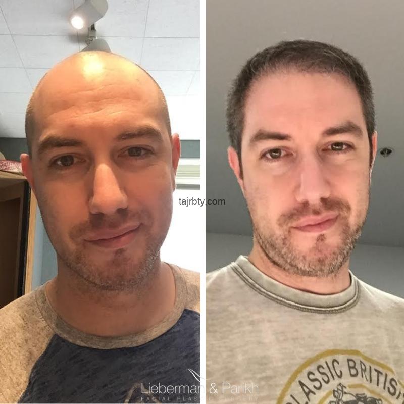 مشاهير قبل وبعد زراعة الشعر