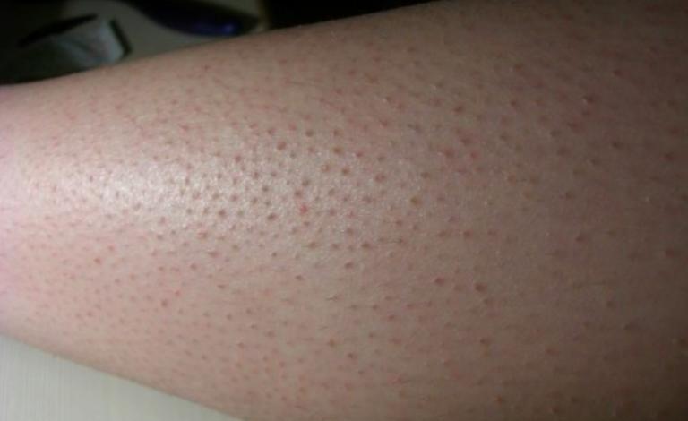 تجربتي في علاج جلد الوزة بالليزر